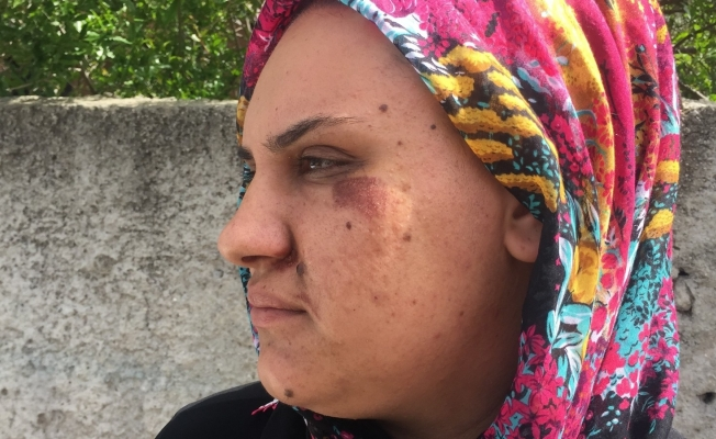 Kapkaççının sürüklediği kadın dehşet anlarını anlattı