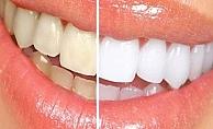 Dişlerde renk değişimine dikkat edilmeli!