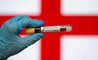 İngiltere'de son 24 saatte korona virüsten 674 kişi öldü