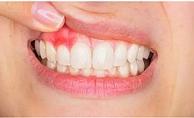 Diş apsesine ne iyi gelir?