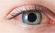 Göz kızarıklığı ne zaman kovid-19 belirtisi olabilir?