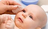 Bebeğinizin gözleri sürekli sulanıyorsa dikkat edin!